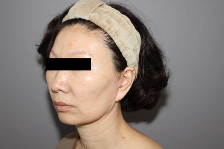 顔への脂肪注入によるアンチエイジング 半年後経過「