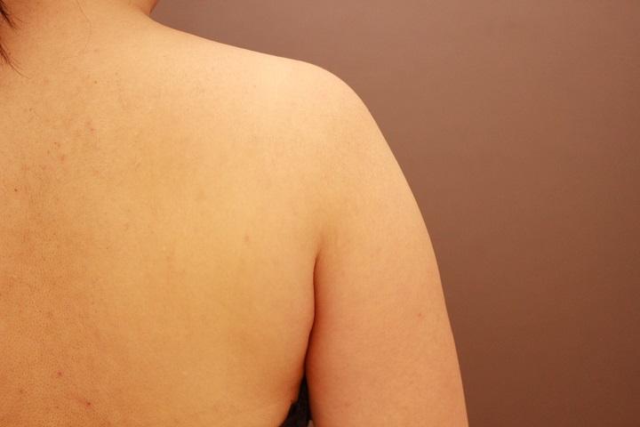 二の腕・肩 脂肪吸引 1か月後