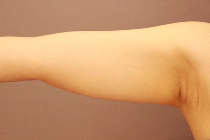 二の腕・肩 脂肪吸引 1か月経過
