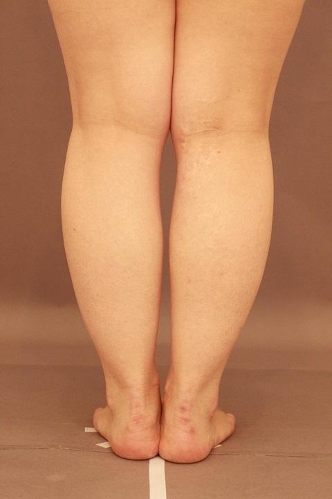 ふくらはぎの脂肪吸引 1か月経過