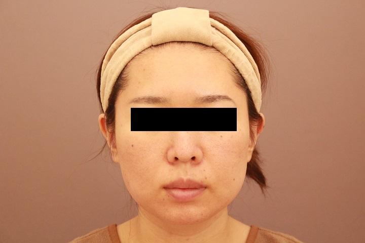 顔の脂肪吸引 1か月経過