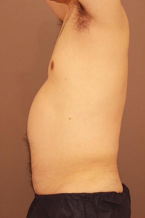 男性の上半身の脂肪吸引 1か月経過