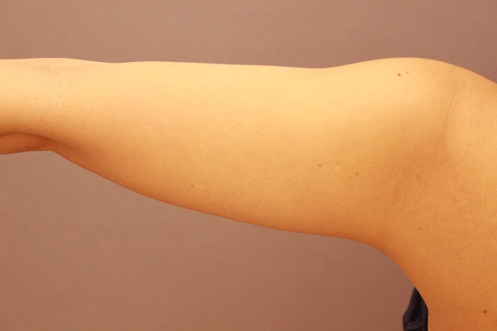 二の腕 脂肪吸引 3か月経過