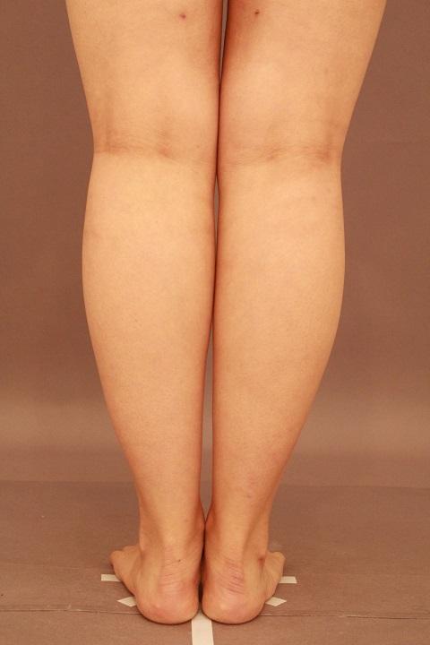 ふくらはぎ 脂肪吸引 3か月経過
