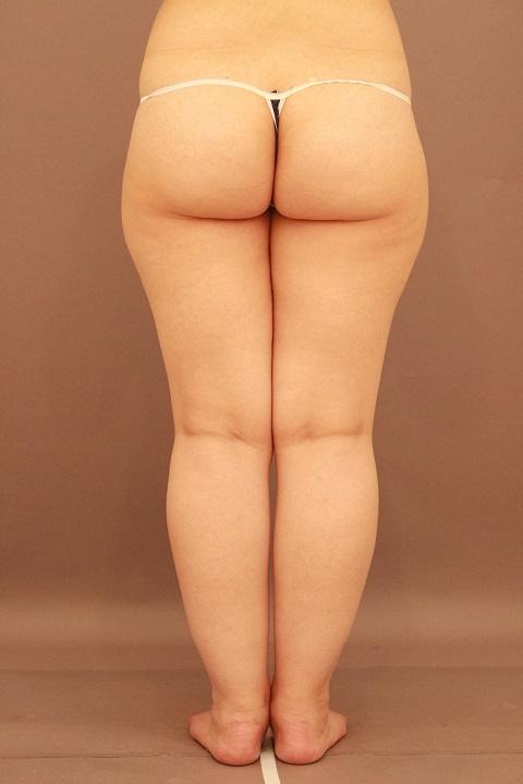 太もも・ふくらはぎ 脂肪吸引 1か月経過