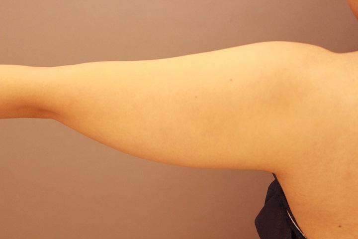 二の腕 脂肪吸引 9か月経過