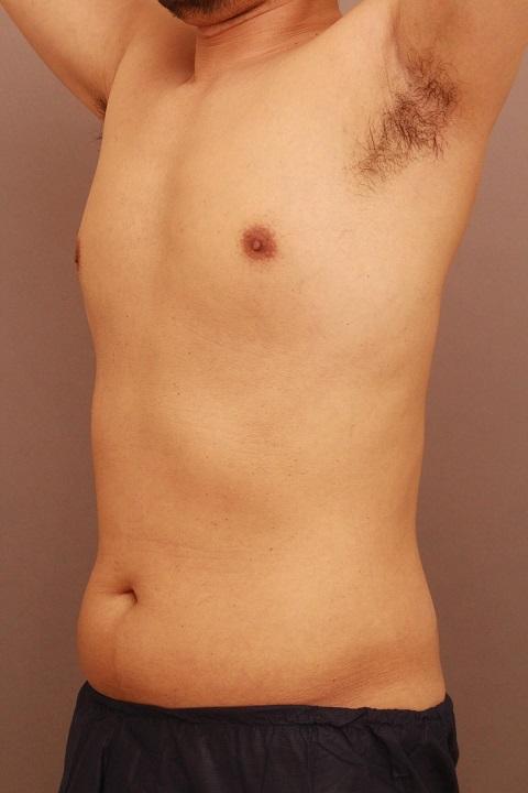 男性のお腹の脂肪吸引 3か月経過