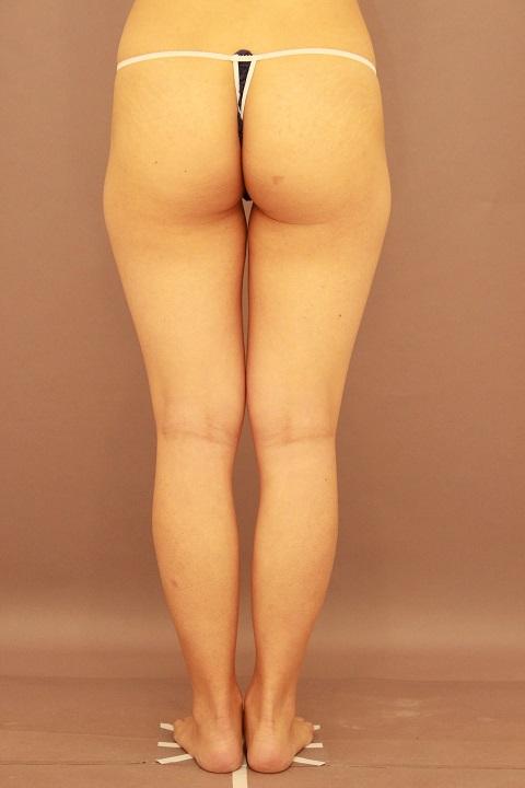 太ももと腰の脂肪吸引 1か月経過