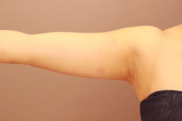 二の腕 脂肪吸引 翌日の内出血の様子