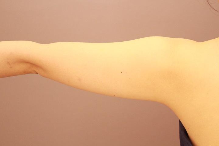 二の腕・肩 脂肪吸引 半年経過