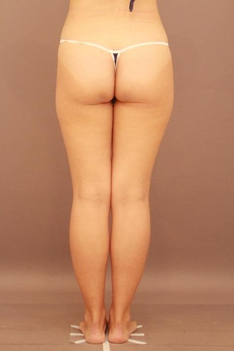 太もも 脂肪吸引 半年経過