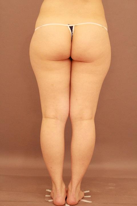 太もも 脂肪吸引 3か月経過