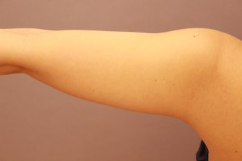 二の腕 脂肪吸引 半年経過