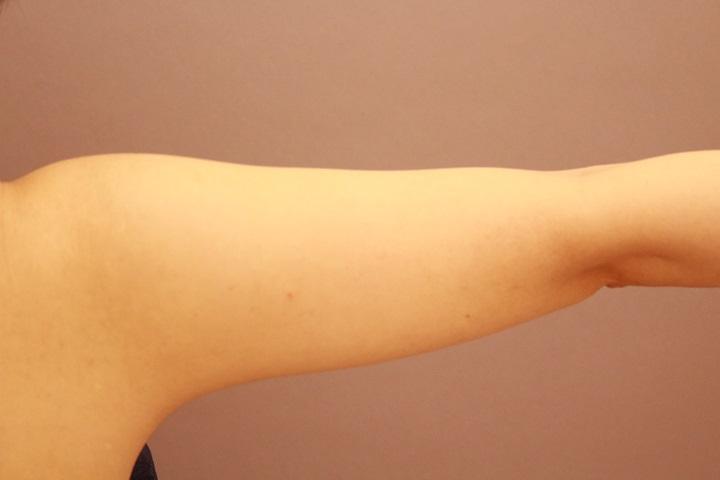二の腕脂肪吸引 術後の内出血の様子