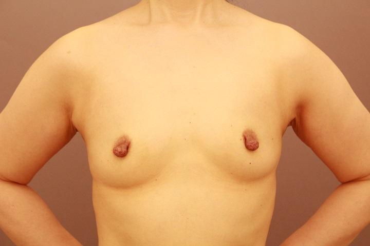 コンデンスリッチ豊胸+乳首縮小 1か月経過