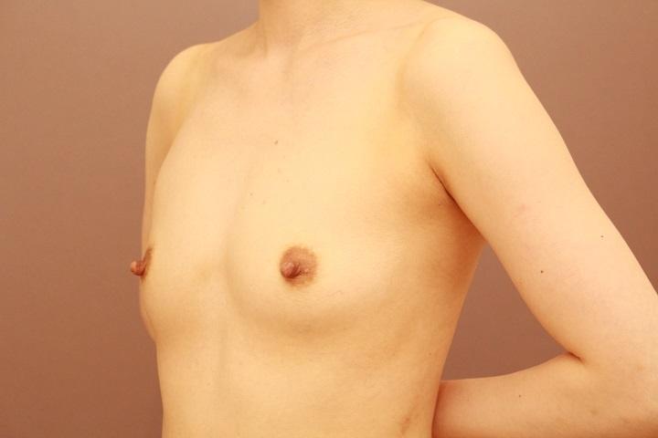 コンデンスリッチ豊胸 1週間後の内出血の状態