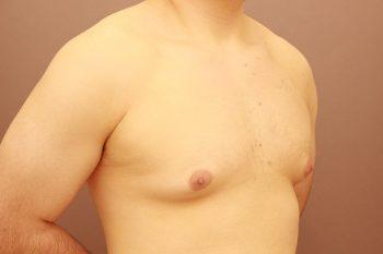 女性化乳房 1か月経過