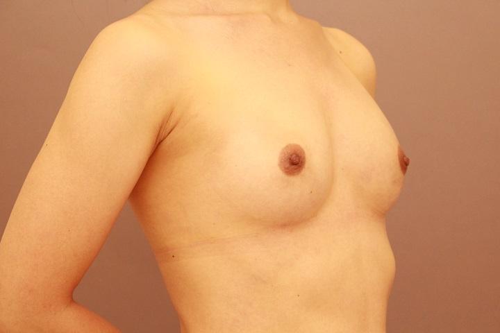 授乳後のコンデンスリッチ豊胸 3か月経過
