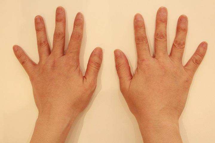 脂肪注入による手の若返り