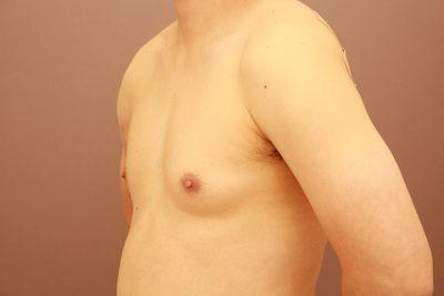 女性化乳房 翌日経過