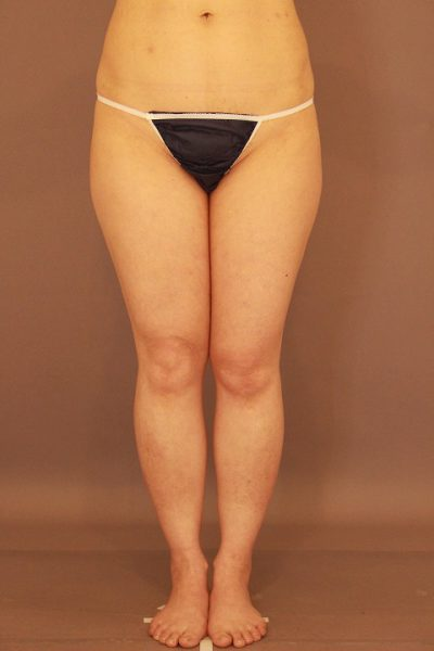 太ももの脂肪吸引 半年経過