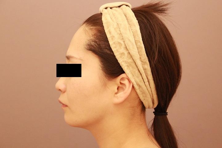 大人気の顎下脂肪吸引の威力