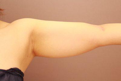 二の腕・肩 3か月経過