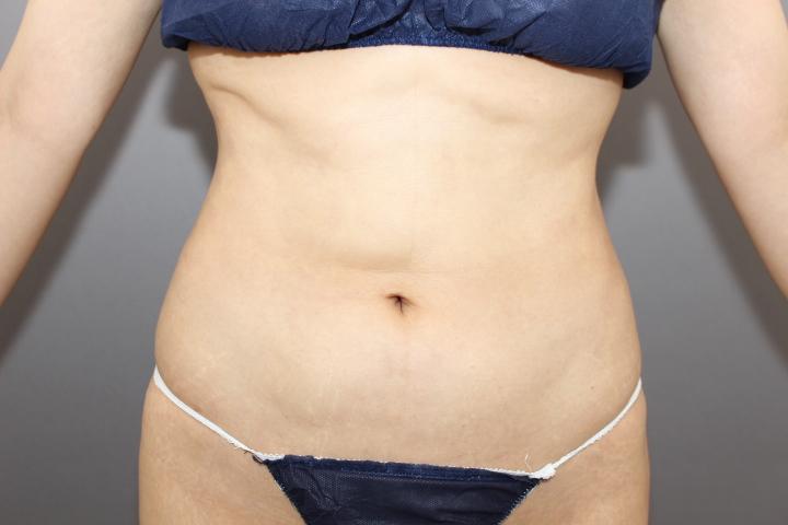 お腹の脂肪吸引 他院修正 動画