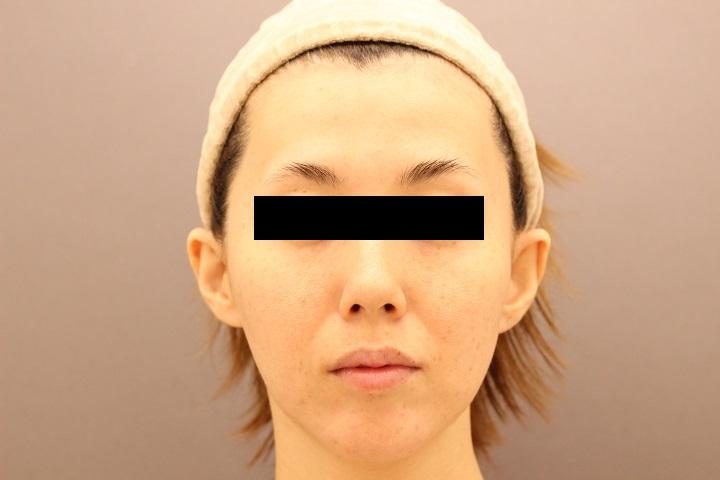 脂肪注入による顔のエイジングケア 1か月後経過
