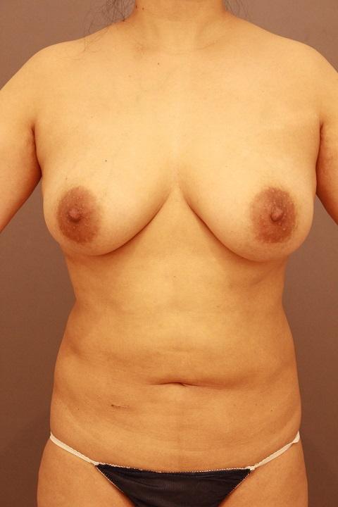 腹部の他院修正 1か月後