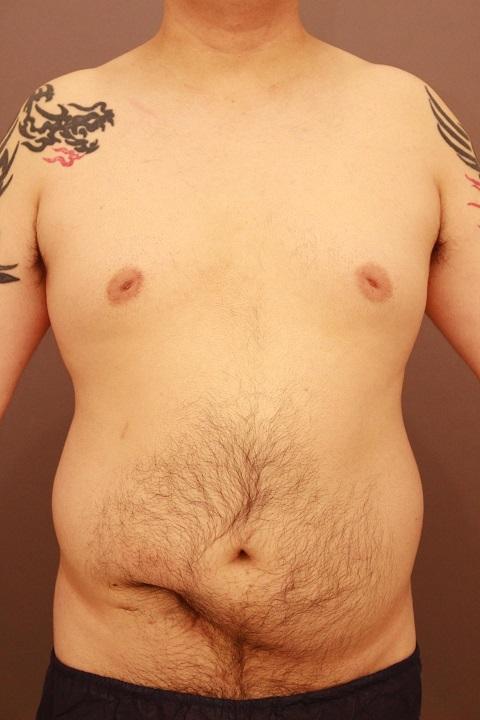 男性の腹部全体・胸・腰 脂肪吸引 3か月経過