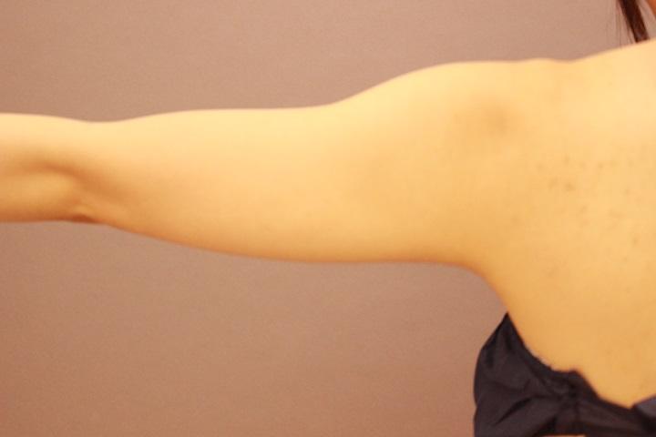 元々細い方の二の腕・肩 脂肪吸引 3か月経過