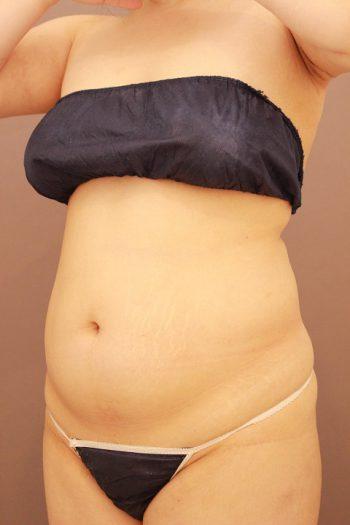 お腹の脂肪吸引 まとめ