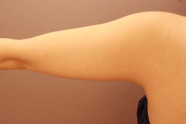 二の腕・肩 脂肪吸引 3か月経過