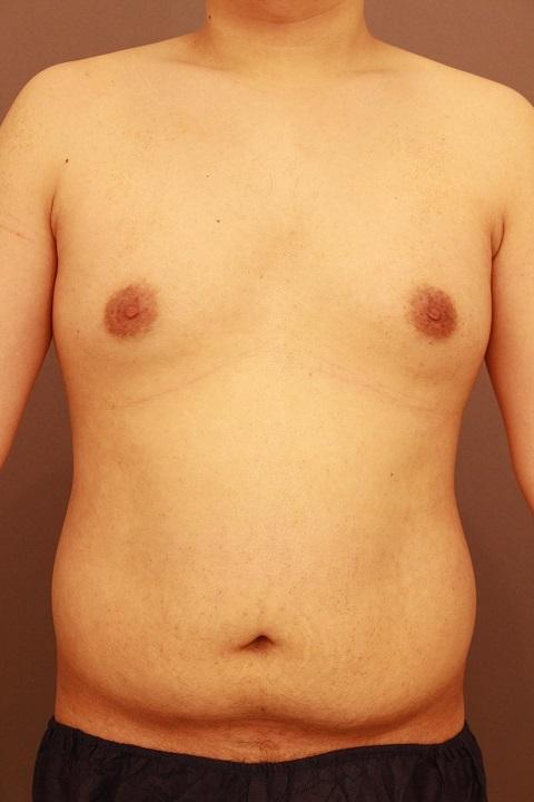 男性の上半身と女性化乳房 3か月後経過