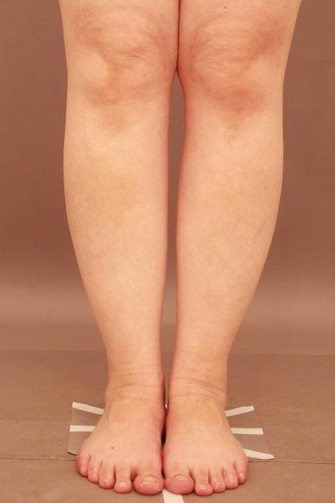ふくらはぎ 脂肪吸引 1か月経過