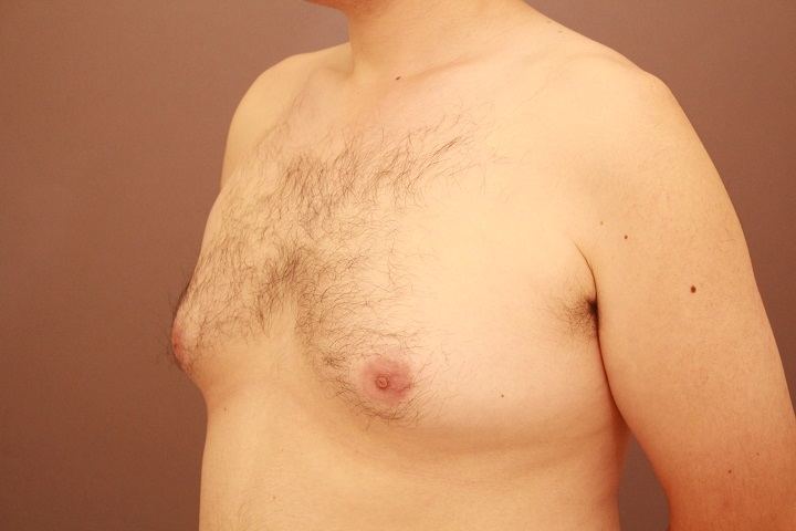 女性化乳房 半年経過