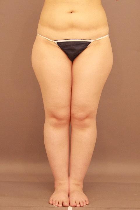 太もも・ふくらはぎ 脂肪吸引 半年経過