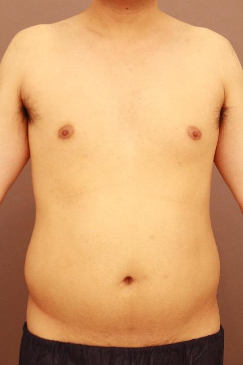 男性のお腹の脂肪吸引 1か月経過