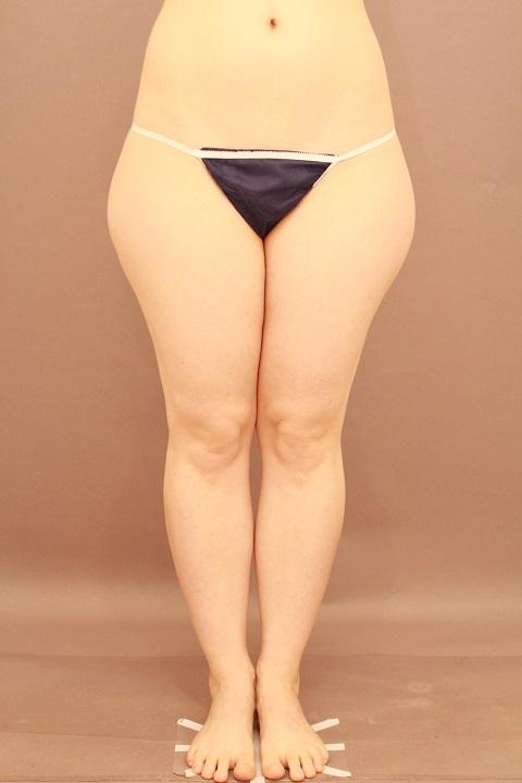 太もも 脂肪吸引 1か月経過