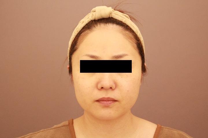 顔の脂肪吸引 半年経過