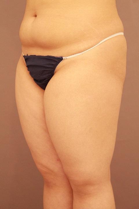太もも 脂肪吸引 1ヵ月経過