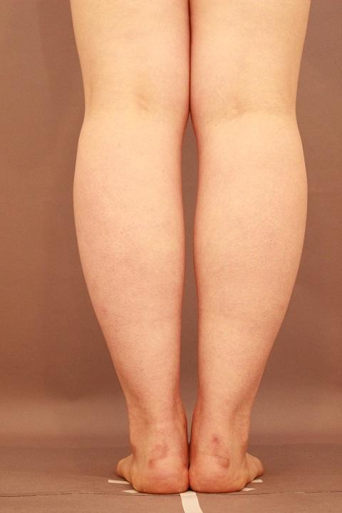 ふくらはぎ 脂肪吸引 半年経過