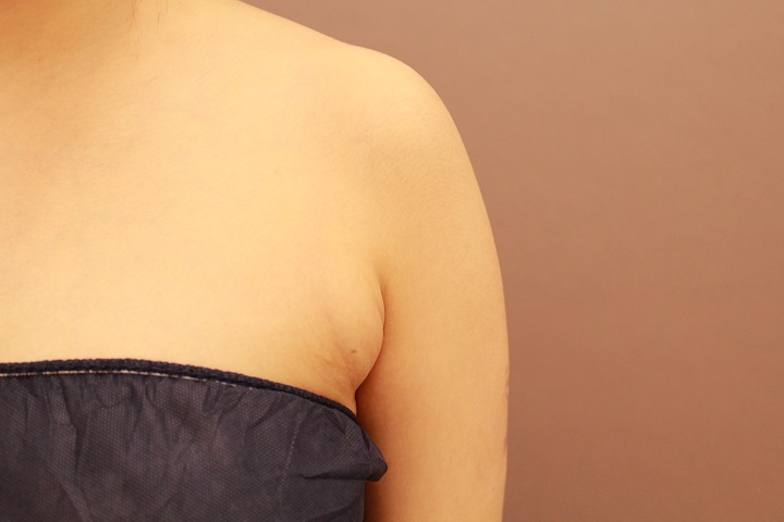 脇肉の脂肪吸引 1か月経過