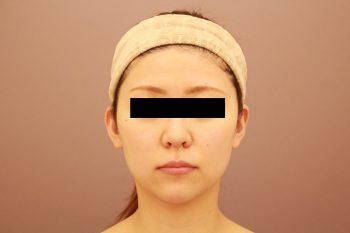 顔の脂肪吸引 3か月経過
