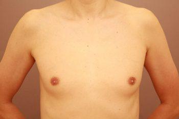 女性化乳房 3か月経過