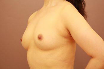 コンデンスリッチ豊胸+乳首縮小 3か月経過