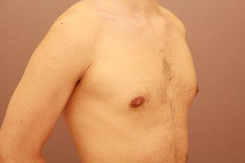 女性化乳房 1週間経過