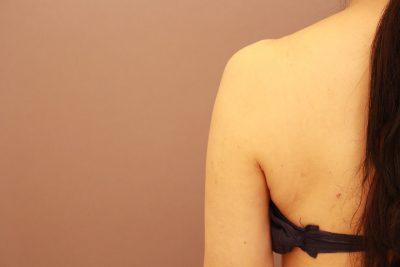 50代の二の腕・肩 ベイザー脂肪吸引 1か月経過