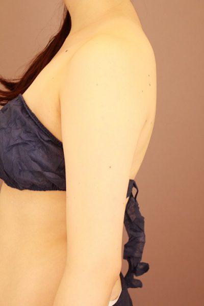 二の腕・肩 ベイザー脂肪吸引 3か月経過